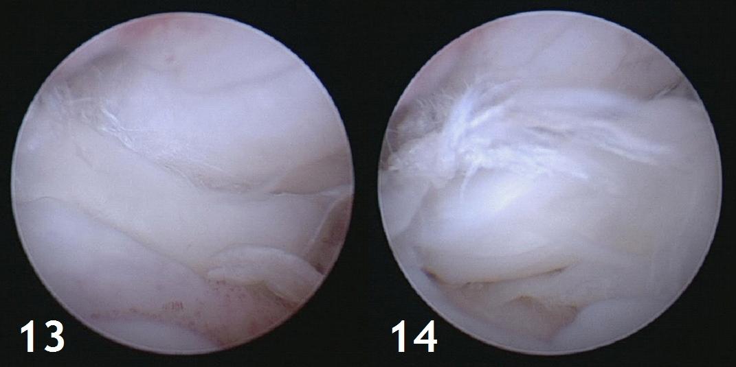 Figure 13 et 14