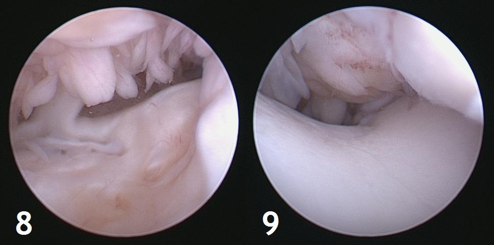 Figure 8 et 9