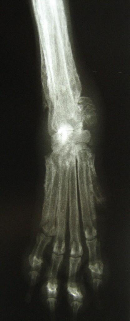 Image radiographique du carpe et du radius droit.
