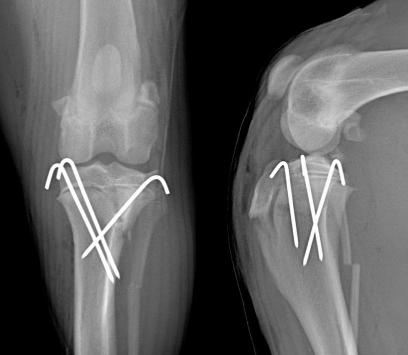 Le plateau tibial a été stabilisé à l'aide de broches de 1,6 mm de diamètre. Deux implantées en face médiale, une par la face latérale